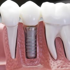 How Dental Implants are being made ? Oral care,Single tooth implant,Dental implant,How Dental surgery is done?Dentist,Whats the process of dental implant? Teeth Implants, Dental Implants, Dental Hygienist, Dental Humor, Dental Health, Dental Care, Oral Health, Health Care, Root Canal Treatment