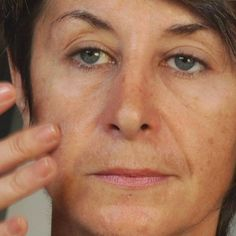 9 Home Remedies For Age Spots