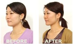 Face yoga ...forget Botox ..start face yoga and combat aging! Before and after pics included!