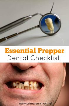 """Prepper's Emergency Dental Kit Checklist and Why You Need One. While it seems obvious to stockpile first aid supplies for emergencies, not many people have an emergency dental kit (aka """"SHTF dental kit""""). Even a lot of the """"hardcore"""" preppers I know still Survival Supplies, Emergency Supplies, Survival Prepping, Emergency Preparedness, Survival Gear, Survival Skills, Survival Essentials, Survival Hacks, Survival Quotes"""