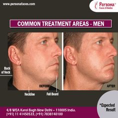 MALE ‪#‎LASERFACIALHAIRREMOVAL‬: Skip the irritating effects of other hair removal types and choose laser hair removal. Choose the area to maintain perfect smoothness. Read More