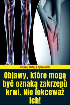 Objawy, które mogą być oznaką zakrzepu krwi. Nie lekceważ ich! Blond, Health, Health Care, Blonde Man, Salud