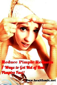 Reduce Pimple Redness - 7 Ways to Get Rid of Red Pimples Fast!You can find Reduce pimple redness and more on our website.Reduce Pimple Redness - 7 Ways to Get Rid of . Reduce Pimple Redness, How To Reduce Pimples, Red Pimples, Rid, How To Get, Website