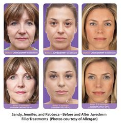 Dermal Fillers - Before and After