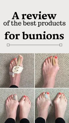 A bit of background about me and my bunions. 38 year old woman's who's suffered from bunions most of my life. They are hereditary, probably made worse from wearing heels for most of my Bunion Remedies, Headache Remedies, Best Shoes For Bunions, Get Rid Of Bunions, Natural Remedies For Allergies, Natural Remedies For Anxiety, 38 Year Old Woman, Bunion Surgery, Wooden Pallet Projects