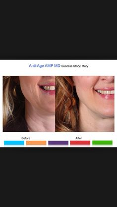 Get the same results with Rodan and Fields Amp MD.   https://beautybycassandra.myrandf.com