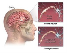 People can have one of several different types of Multiple Sclerosis. The way the symptoms occur determines what type of MS a person may have. The most common type of Multiple Sclerosis is known as Nerve Conduction Study, Lumbar Puncture, Cidp, Guillain Barre Syndrome, Cerebrospinal Fluid, Peripheral Nerve, Central Nervous System, Medical History, Fibromyalgia
