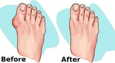 Here's how to get rid of bunions naturally with the help of only one ingredient. You must try this simple, but very effective remedy immediately.