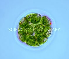 Pandorina green algae, light micrograph
