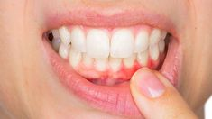 Top Oral Health Advice To Keep Your Teeth Healthy. The smile on your face is what people first notice about you, so caring for your teeth is very important. Unluckily, picking the best dental care tips migh Gum Disease Treatment, Best Teeth Whitening, Wisdom Teeth, Healthy Teeth, Medical Prescription, Dental Implants, Dental Surgery, Oral Hygiene, Oral Health