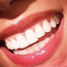 209 Best Perfect Teeth Images On Pinterest Perfect Teeth