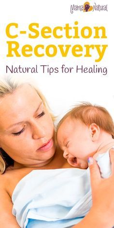 Believe me when I say I know EXACTLY how hard cesarean or c-section recovery truly is! But I was able to do so quickly & naturally with these tips. http://www.mamanatural.com/c-section-recovery/
