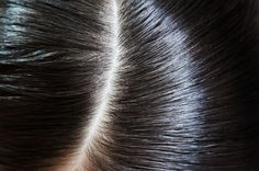 Expert advice on how those with thinning hair can stimulate regrowth, as well as tips to make existing strands healthier and thicker!