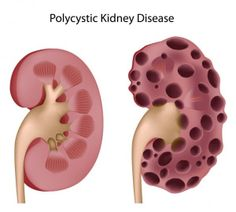 Kidney cyst can damage surrounding parts of body especially large kidney cyst can damage surrounding parts of body especially large kidney cyst for patients with large kidney cyst they ar ccuart Choice Image