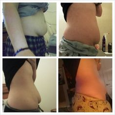 this is the best weight loss program i ever had! Weight Loss Video, Best Weight Loss Pills, Best Weight Loss Program, Easy Weight Loss, Healthy Weight Loss, Help Losing Weight, Need To Lose Weight, Reduce Weight, Lose Fat