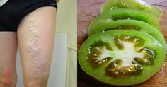 Green tomatoes are a simple folk remedy to use against varicose. Wash a few green tomatoes and chop them into pieces or circles. You should apply the chopped green tomatoes onto the knots of varicose veins, directly onto the veins and onto the venous. Natural Treatments, Natural Cures, Natural Healing, Varicose Vein Remedy, Varicose Veins, Difficult To Cure, Sante Plus, Natural Medicine, Health Remedies