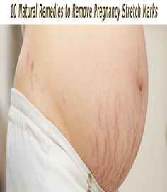 10 Natural Remedies to Remove Pregnancy Stretch Marks