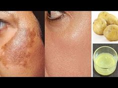 A Magical Remedy to Remove Skin Pigmentation at home naturally. These is the amazing home remedies for Hyperpigmentation with Potato. These Remedy also remove your dark spot, Acne Scars and blemishes on skin For this take 1 tomato, take out its juice. Pottao juice is very effective to remove dark spots from your skin and …