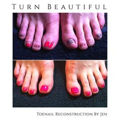 Toe Nail Reconstruction with BioSculpture Gel. Bio Sculpture Gel, Toe Nails, Brighton, Beauty, Beautiful, Toenails, Toe Polish, Cosmetology, Feet Nails