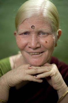 The World's Biggest Albino Family
