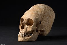 FRANCE - A woman's deformed skull was found in one of the tombs, which dates to around 1,650 years ago.