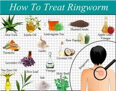 Natural Remedies For Varicose Veins Home remedies to Cure Ringworm quickly. ringworm treatment at home. the Best medicines, creams to get rid of tinea. Scalp Ringworm causes symptoms. Varicose Vein Removal, Varicose Vein Remedy, Varicose Veins, Home Remedies For Ringworm, Hair Remedies, Natural Remedies, Turmeric Coconut Oil, Facial Warts, Get Rid Of Eczema