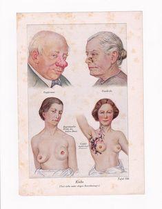 Antique Medical Art Print Cancer Disease 1920s German Antique Prints, Vintage Prints, Vintage Photos, Medicine Pictures, Medical Illustrations, Playing Doctor, Medicine Book, Lesbian Art, Medical Art