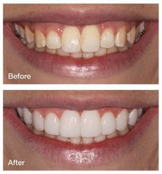 My mom had her teeth done and the doctor ground down her teeth to little nubs before he put the veneers on She was in a lot of pain I was afraid t Skin Care Regimen, Skin Care Tips, Make Teeth Whiter, Beauty Hacks Skincare, Beauty Makeup, Beauty Products, Whitening Face, Homemade Skin Care, Good Skin