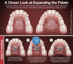 How palatal expanders work