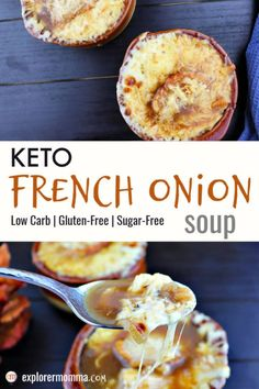Delicious keto French onion soup is high protein and packed with flavor. This low carb comfort food will have you dreaming of Paris. Friendly for a keto diet and topped with gluten-free garlic crostini and gruyere cheese. Low Carb Soup Recipes, Onion Soup Recipes, Ketogenic Recipes, Keto Recipes, Ketogenic Diet, Low Carb French Onion Soup Recipe, Dinner Recipes, Dukan Diet, Healthy Recipes