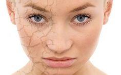 Come idratare la pelle secca in modo naturale L'inverno é sicuramente la stagione peggiore per la salute della tua pelle: gli sbalzi climatici e i pelle secca idratazione faidate