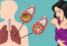 Вот как устранить слизь и мокроту от горла и легких (мгновенный результат)!