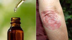 Tea tree oil can remove dead skin cells.