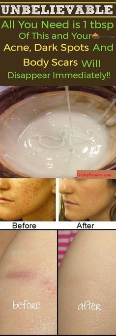 The woman without wrinkles she is 33 and uses only 2 ingredients to this homemade magic face mask is the only mask youll ever need especially if you have spots acne solutioingenieria Image collections