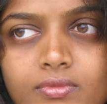 black eyes wound dark skin - Bing images