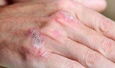 Le psoriasis est une maladie de la peau qui entraîne une inflammation et une desquamation, et qui s'accompagne de douleurs, d'échauffements, et de taches.