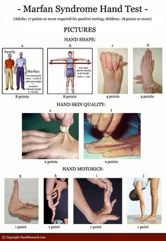 A Hand-Test for recognizing Marfan syndrome! Ehlers Danlos Syndrome Symptoms, Elhers Danlos Syndrome, Marfan Syndrome, Chronic Illness, Chronic Pain, Fibromyalgia, Hand Therapy, Physical Therapy, Jeans For Genes Day