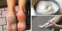 Każdego dnia, gdy chodzimy, pracujemy i załatwiamy różne sprawy, skóra naszych stóp poddawana jest działaniu wielu czynników, które mogą ją uszkodzić. Często jednak nie mamy czasu, aby odpowiednio o nią zadbać. Brak odpowiedniej pielęgnacji prowadzi do