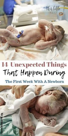 Outstanding baby arrival detail are offered on our site. Check it out and you wont be sorry you did. New Parents, New Moms, New Born Boy, Baby Care Tips, Baby Tips, Postpartum Care, After Baby, Baby Arrival, Newborn Care