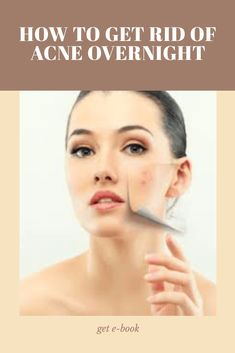 Clear Acne Overnight, How To Get Rid Of Acne, Clear Skin