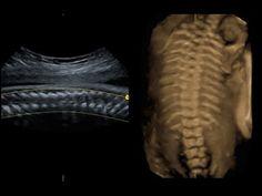 Ayrıntılı ultrasonografi ve renkli Doppler ultrason ile fetal değerlendirme