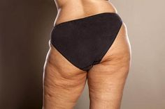 In addition, you can likewise develop cellulite if you do not work out enough or if you do not see what you consume really thoroughly. Food abundant in carbohydrates, fats, and low-fiber food increase fat storage in the body and causes cellulite. Coconut Oil Cellulite, Cellulite Scrub, Cellulite Remedies, Reduce Cellulite, Anti Cellulite, Cellulite Cream, Fat Burning Cream, Get Whiter Teeth, Best Teeth Whitening