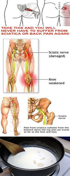 TAKE THIS AND YOU WILL NEVER SUFFER THE SCIATICA AND THE BACK PAIN