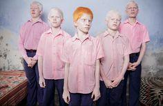 India – Blinde albino-kinderen in de slaapzaal van hun kostschool. (Eerste prijs in categorie Geënsceneerde portretten.)