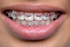 Dental Braces for your teeth straightening. What problems treats orthodontics, Types of braces. Our orthodontist can help you! Pink Braces, Fake Braces, Braces Cost, Braces Tips, Dental Braces, Teeth Braces, Braces Smile, Dental Care, Better Braces