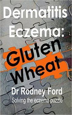Dermatitis Eczema: Gluten Wheat: Solving the eczema puzzle - Kindle edition by Rodney Ford. Health, Fitness & Dieting Kindle eBooks @ Amazon.com.