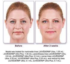 Marionette facial lines