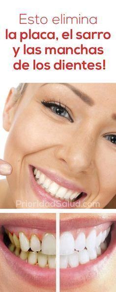 Usa estre truco para eliminar sarro dental, la placa, las manchas de los dientes y mantener las encías sanas.
