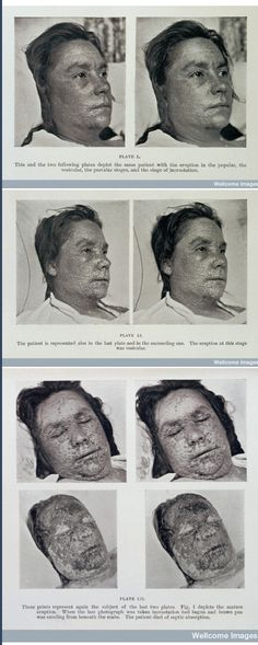 1908. Progression of a Fatal Case of Smallpox. ©Welcome images