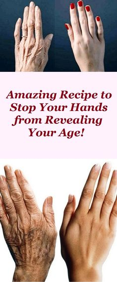 Beauty Remedies DIY anti-aging hand solutions - The aging process is a natural and normal process manifested with the first obvious signs reflected on our skin like wrinkles, enlarged pores, sagging skin on our face and neck, . Beauty Skin, Health And Beauty, Beauty Care, Beauty Secrets, Beauty Hacks, Beauty Ideas, Get Rid Of Blackheads, Hand Care, Sagging Skin